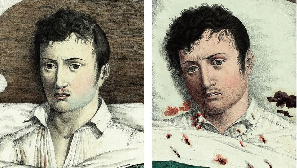 Dahingerafft:Die Zeichnungen von 1819 beschreiben den Verlauf einer Gelbfieberinfektion bei einem Gesunden. Zunächst zeigen sich Rötungen, dann Blässe, schließlich kommt es zu Blutungen im Rachenraum.