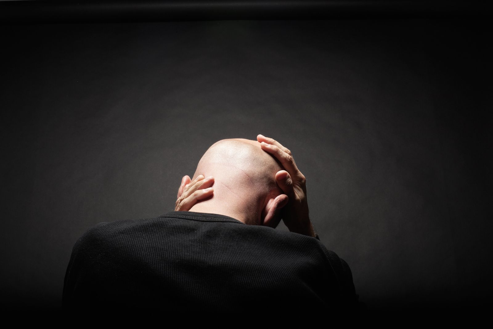 NICHT MEHR VERWENDEN! - Haarausfall/ Glatze