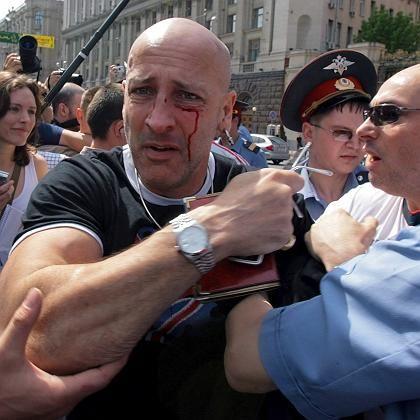 """Verletzter Demonstrant: """"Na, wie fandest du das, Tunte?"""""""