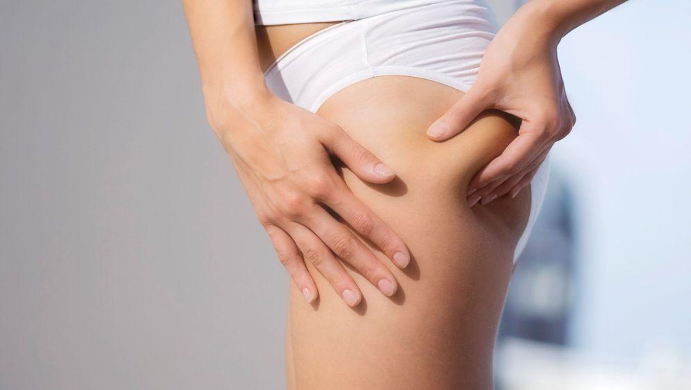 Beulentherapie: Der Krampf mit der Cellulite