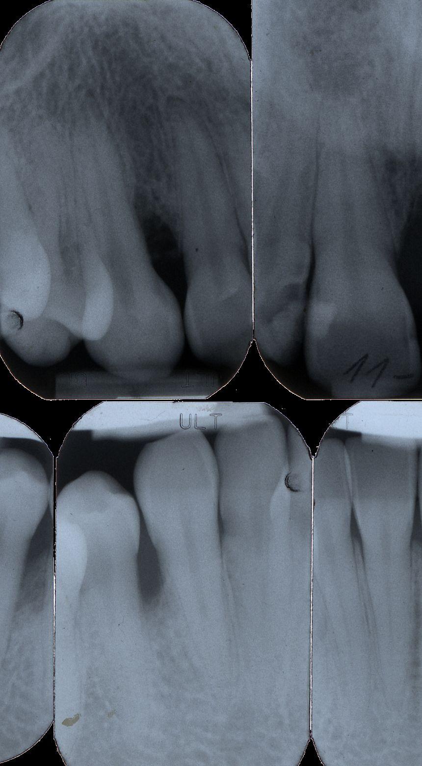 EINMALIGE VERWENDUNG Parodontitis/ Röntgen