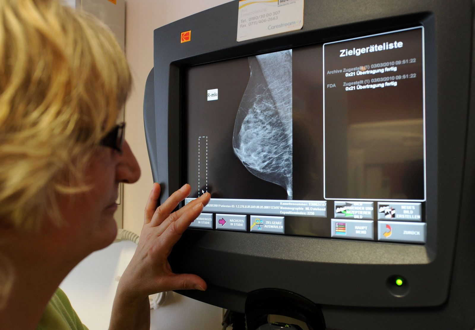 Brustkrebs / Vorsorge / Mammografie