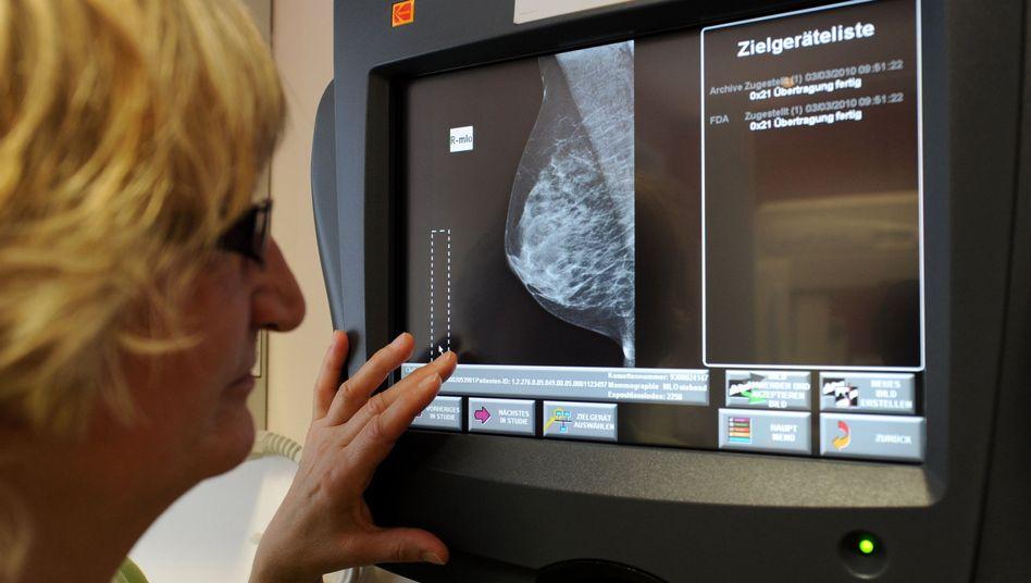 Brustkrebsvorsorge: Künftig wird auch zur Früherkennung von Darm- und Gebärmutterhalskrebs eingeladen