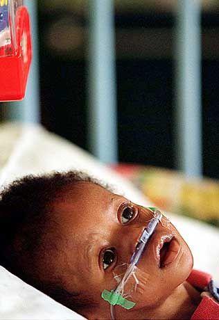 Aidskrankes Kind: Einfaches Antibiotikum kann das Leben deutlich verlängern
