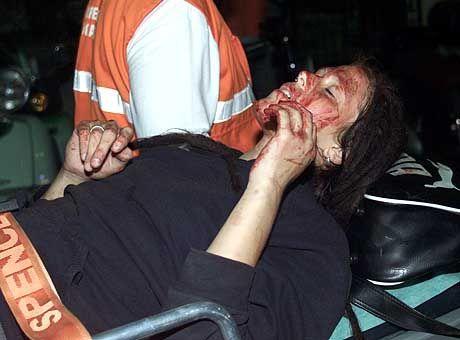 Die Verletzungen der Frau zeugen von der Brutalität der Polizei