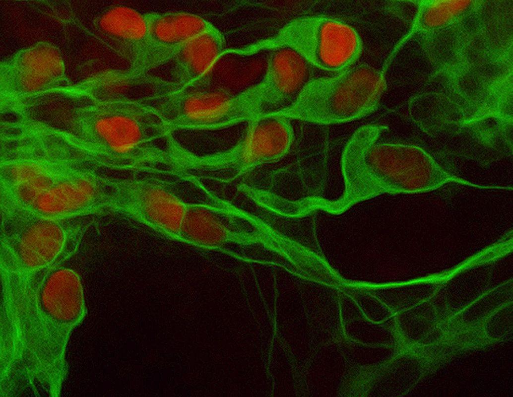 Motor-Neuronen / ALS