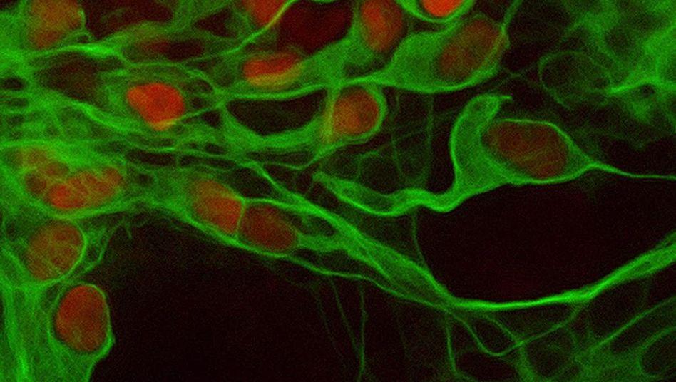 Nervenzellen: Zerstört von ALS