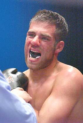Spengemann verletzte sich beim Fight an der Schulter
