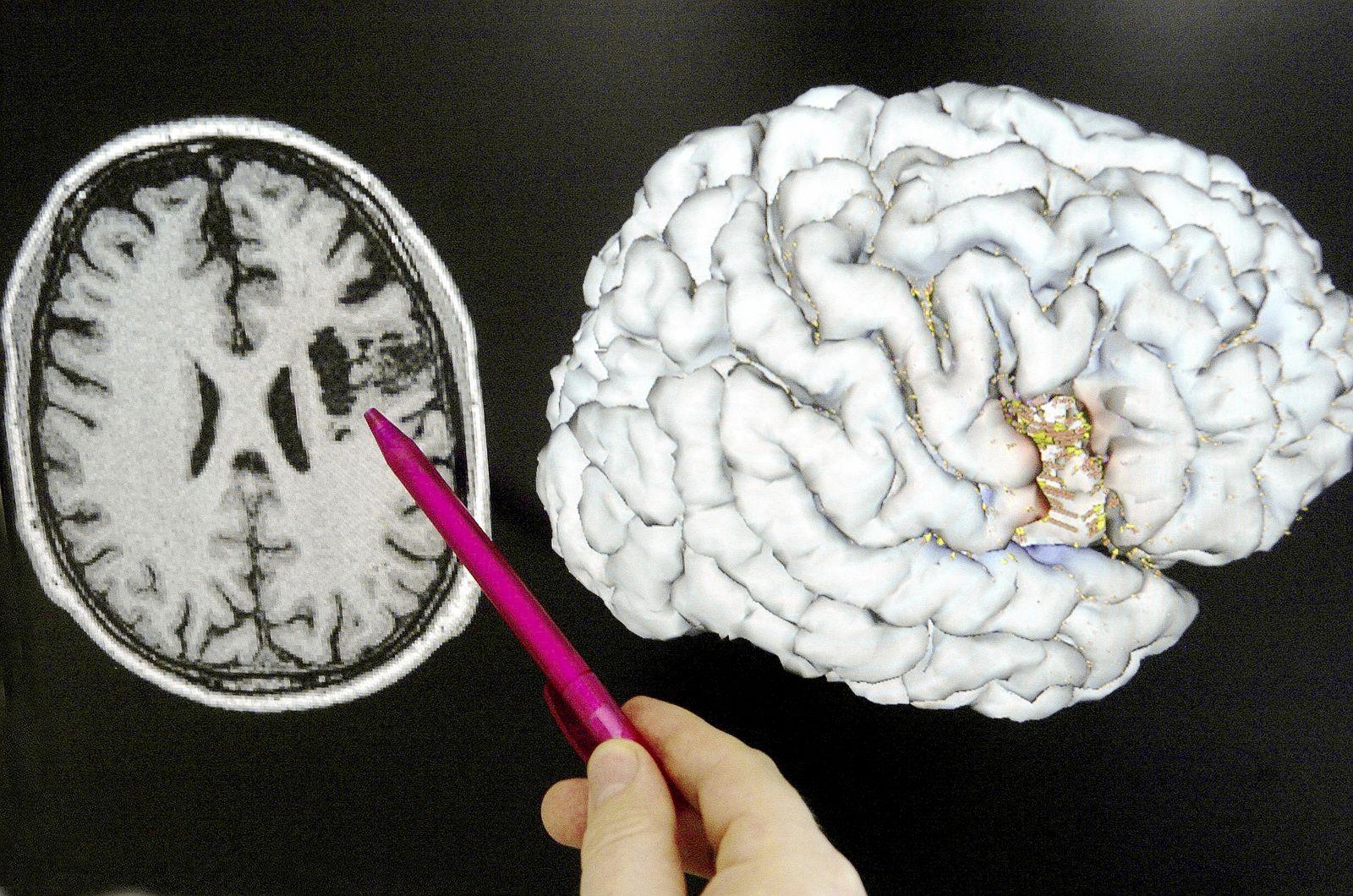 Gehirnforschung / Scan / MRT
