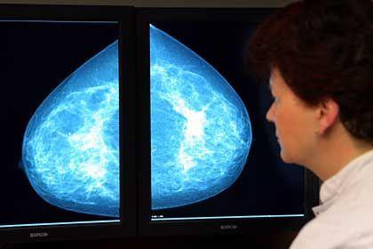 """Mammographie: """"Ärzte haben keine adäquate Ausbildung im Verständnis von Risiken und Unsicherheiten"""""""