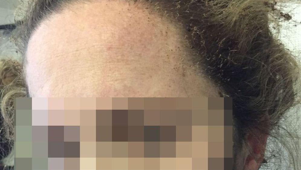 Verletzter Fluggast: Kopfhörer geht in Flammen auf