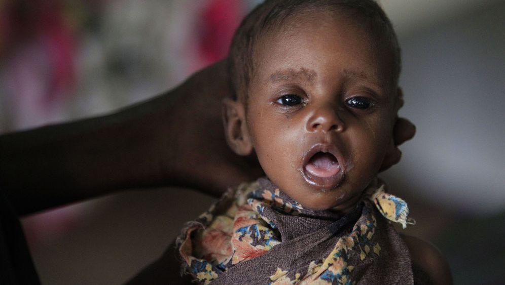 Hungersnot in Ostafrika: Das Leid der Kinder