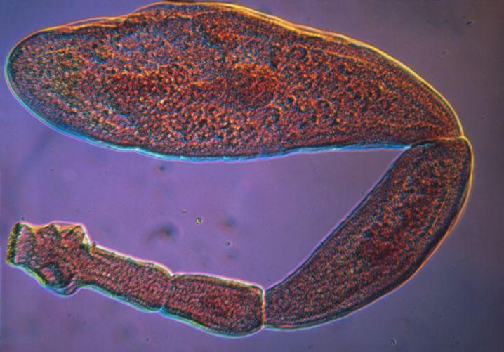 Echinococcus granulosus, der Hundebandwurm, wird nur vier bis sieben Millimeter groß