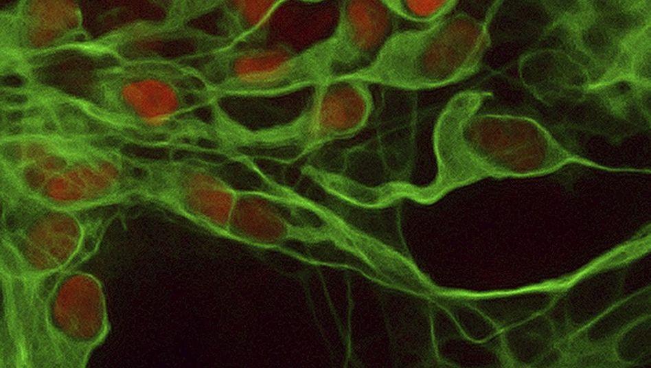 Nervenzellen (aus Stammzellen gezüchtet): Massensterben im Alzheimer-Gehirn