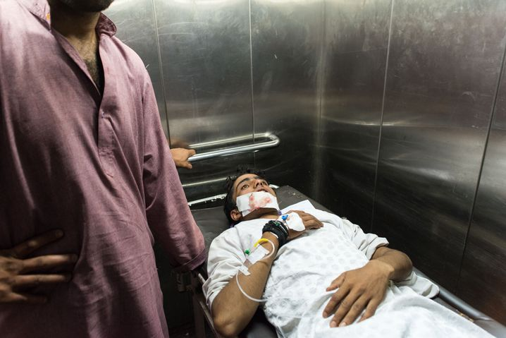 An injured teenager at a hospital who was struck by pellets.