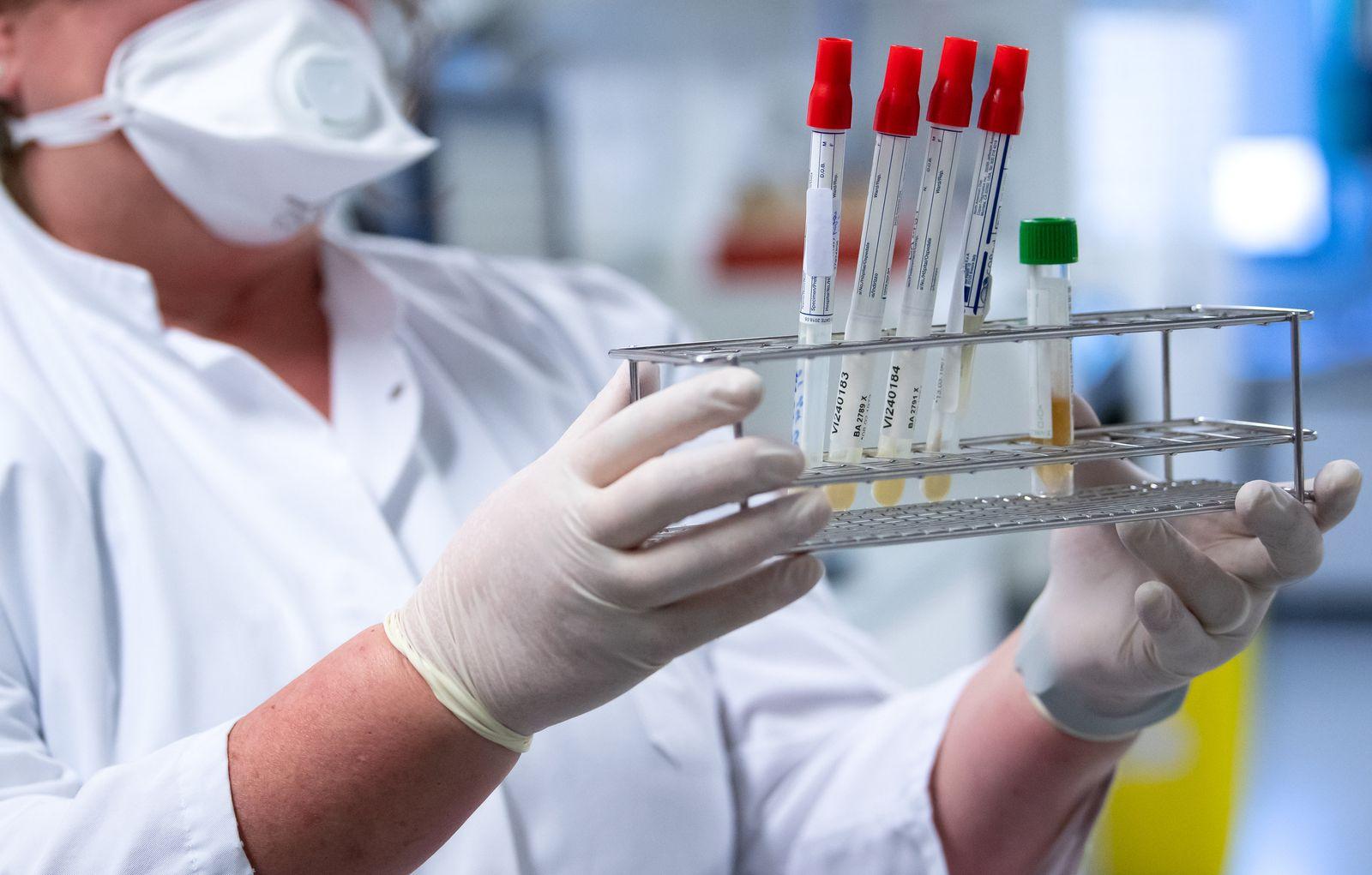 Coronavirus - Institut für Virologie