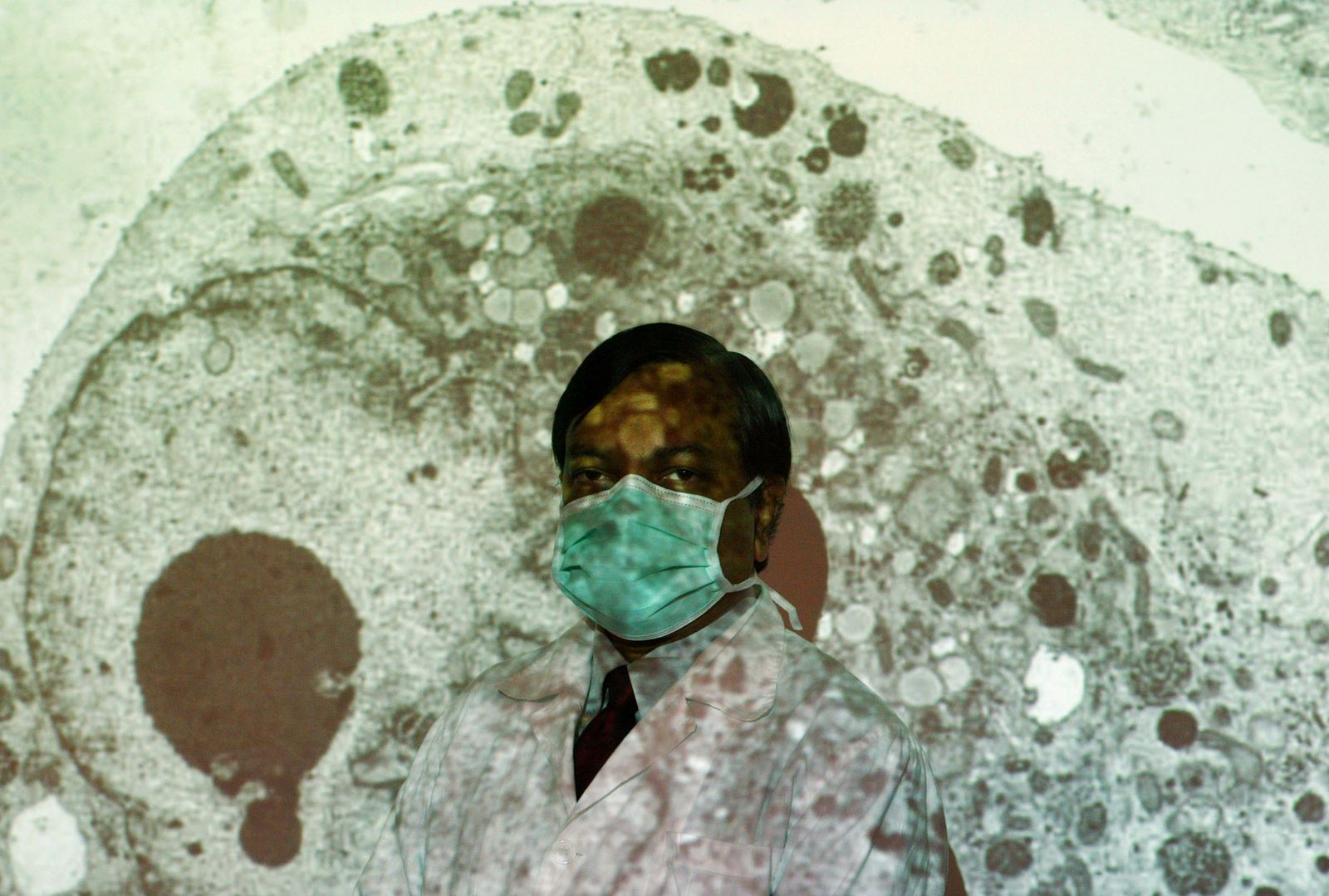 PROFESSOR PEIRIS STANDS IN FRONT OF PROJECTION SHOWING INFECTED CELL IN HONG KONG
