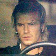 Fußballer Beckham (mit genähter Augenbraue): Wütender Trainer