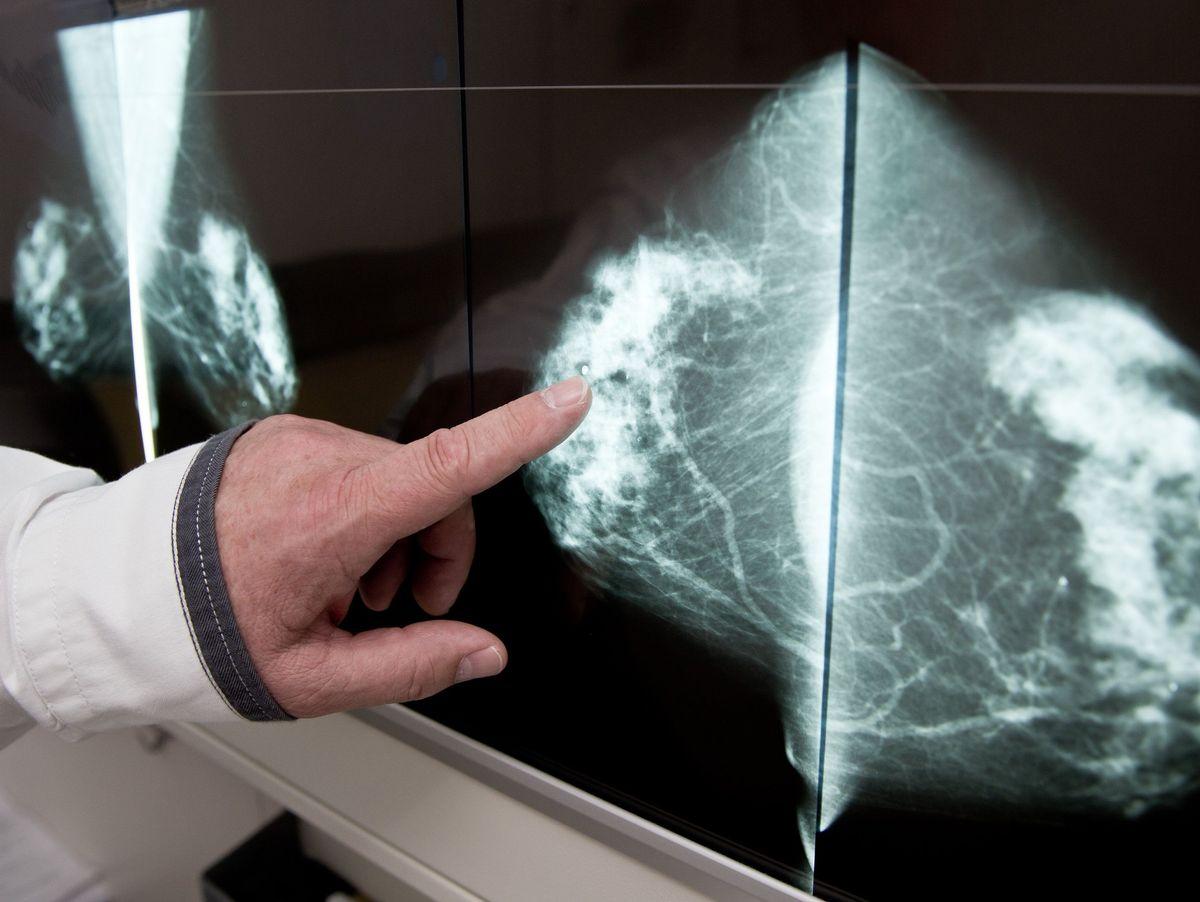 Der brust gewebe in dichtes Brustkrebs: Dichtes