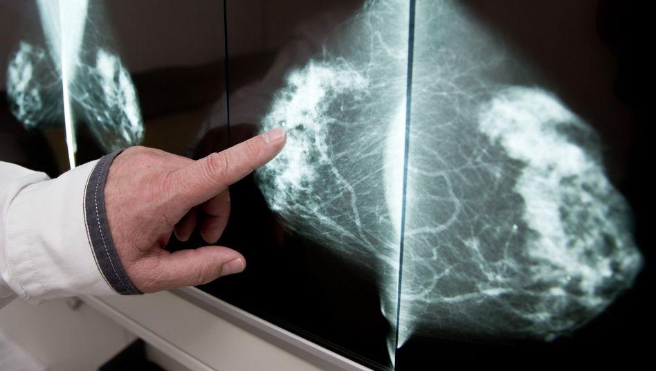 Röntgenaufnahme einer Brust
