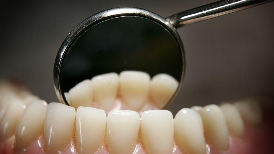 Modellgebiss: Karies lässt sich mit richtiger Mundhygiene vermeiden