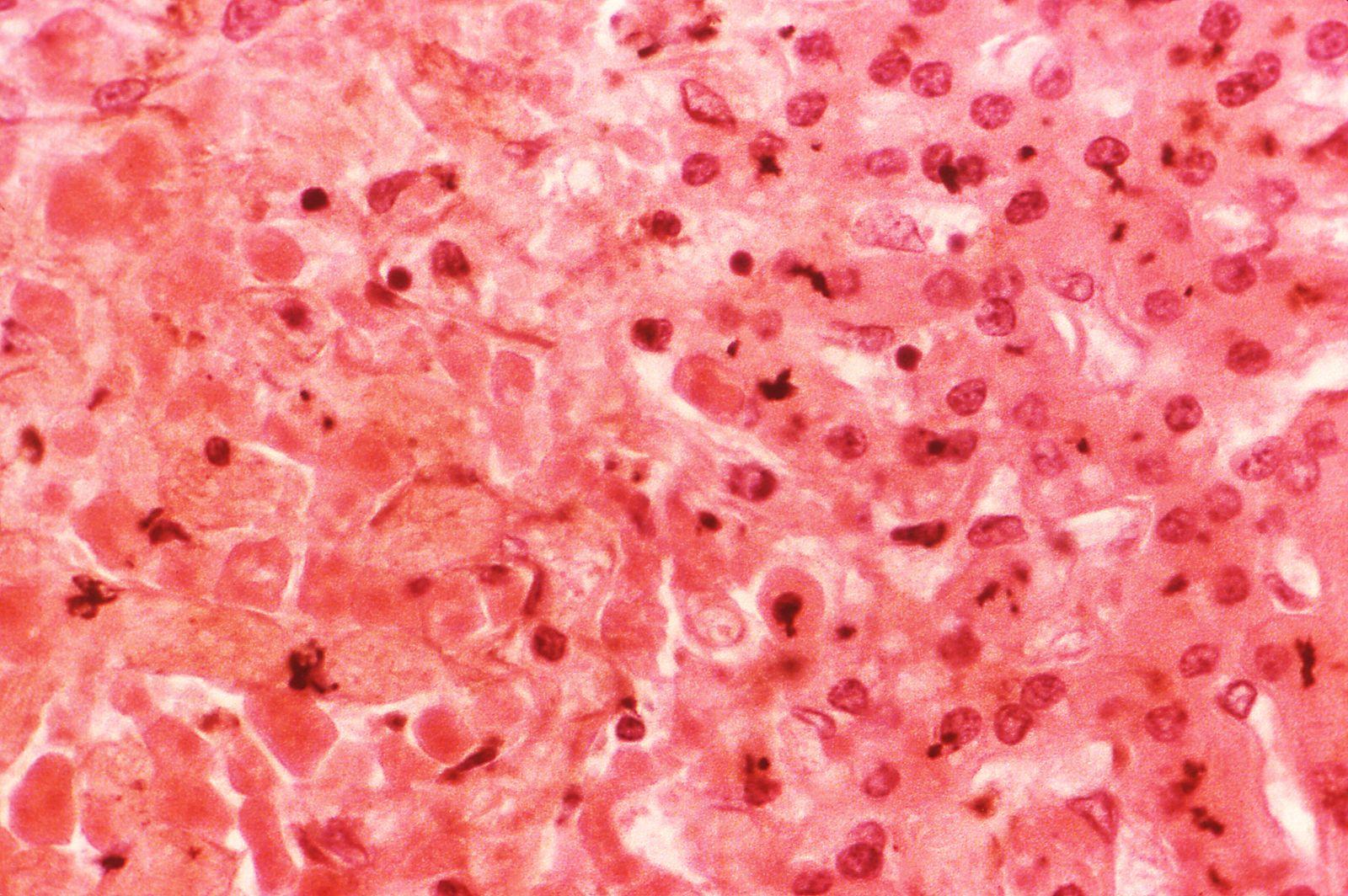 EINMALIGE VERWENDUNG Hepatitis