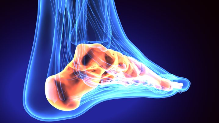 Günstigere Hebelverhältnisse: Darstellung eines Fußes mit Fersenbeinknochen (l.) und Achillessehne
