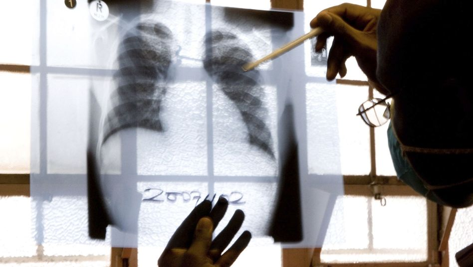 Röntgenaufnahme eines Brustkorbs: Woher kommt die Luftnot?
