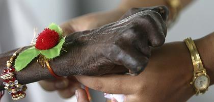 """Hand einer Leprakranken (mit traditionellem indischem Glücksbringer """"Rakhi""""): Leiden seit 4000 Jahren bekannt"""