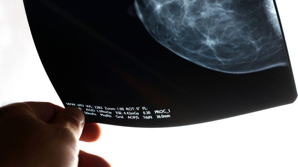 Röntgenbild zeigt das Gewebe einer Brust
