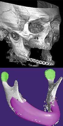 Kieferprothese: Idealform am Computer entwickelt