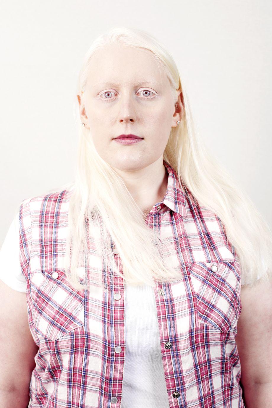 Albinos in Europa Pigmentlos schön   DER SPIEGEL