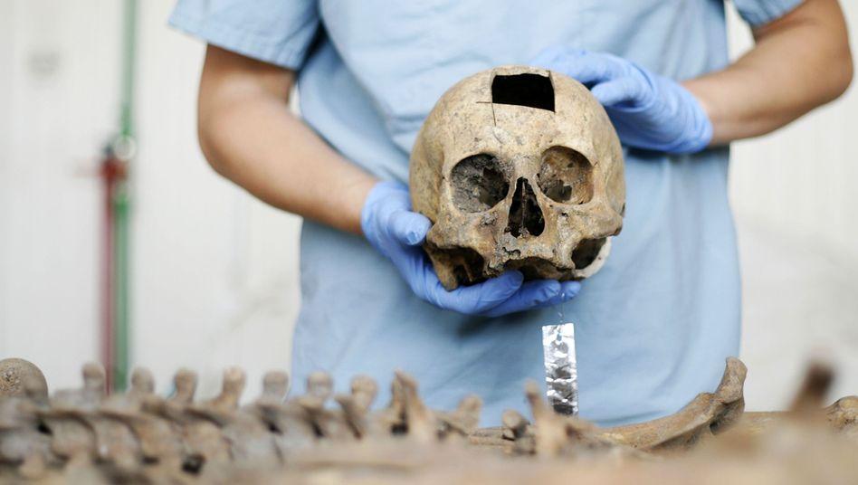 Forensiker mit Schädel: Schlüsselrolle bei der Aufklärung von Verbrechen