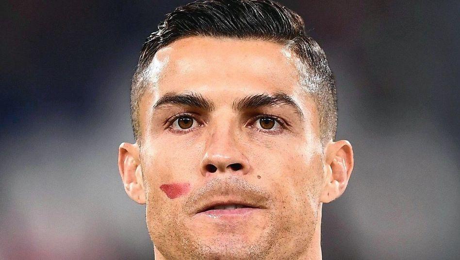 Juventus-Stürmer Ronaldo. Anlässlich des Internationalen Tages zur Beseitigung von Gewalt gegen Frauen am 25. November trugen am 13. Spieltag der Serie A Profis und Schiedsrichter einen roten Streifen auf der rechten Wange.
