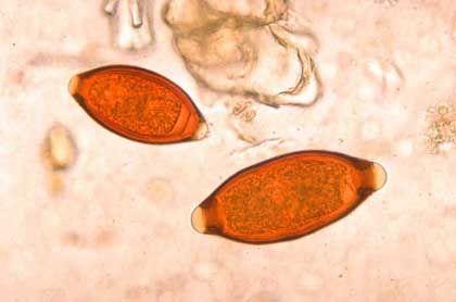 Bandwurmeier: Ein verwandter Parasit kann gegen Morbus Crohn helfen