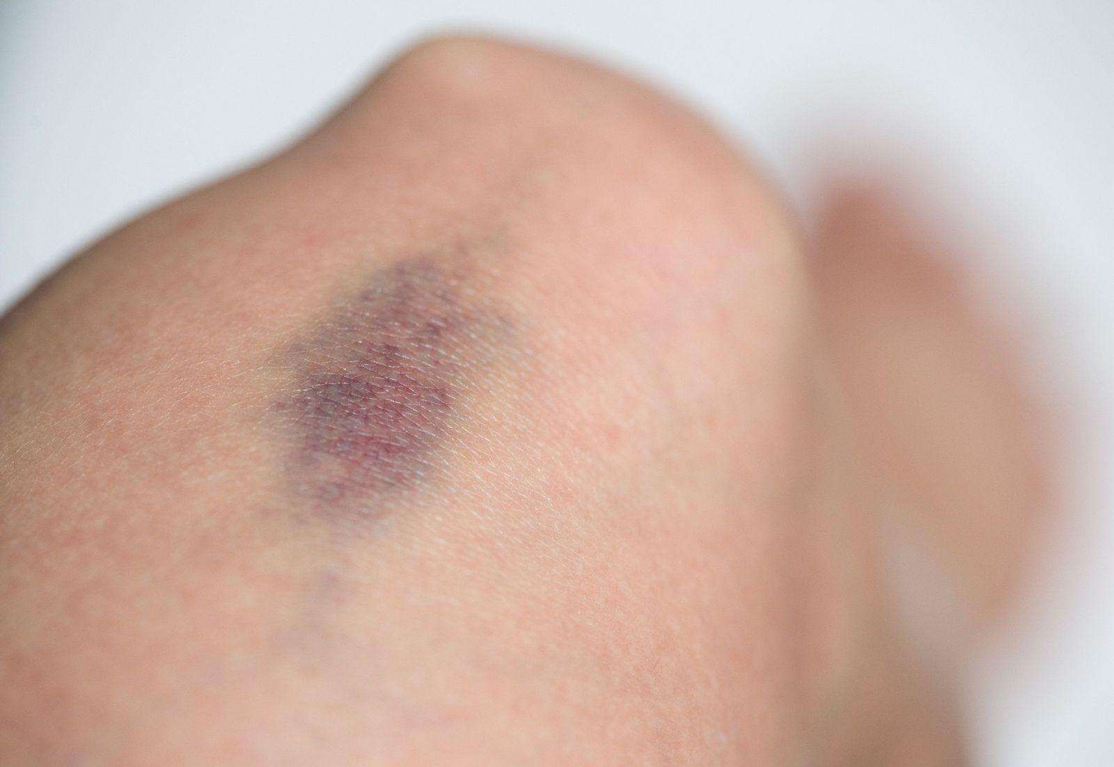EINMALIGE VERWENDUNG Bluterkrankheit/ Hämophilie/ Blauer Fleck