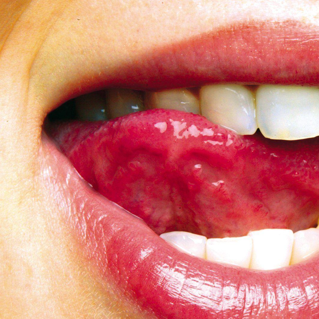 perlweiss dental bleaching anleitung