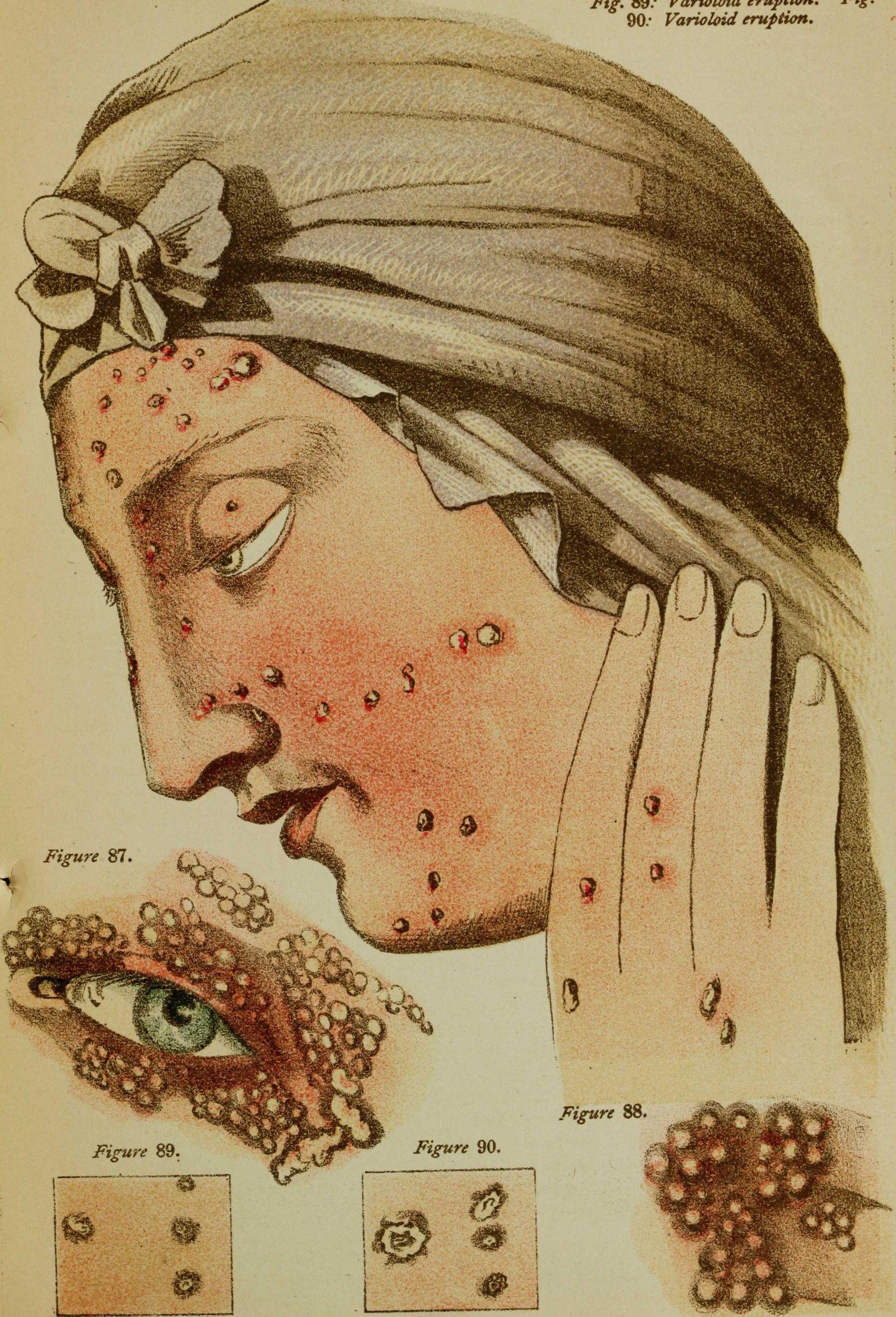 Smallpox Pustules