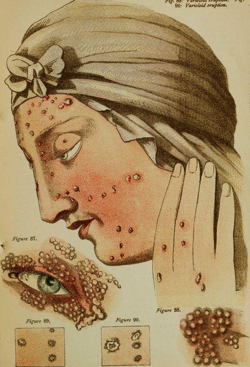 Pockenerkrankte hatten oft Hunderte Pusteln überall am Körper (Illustration von 1884)