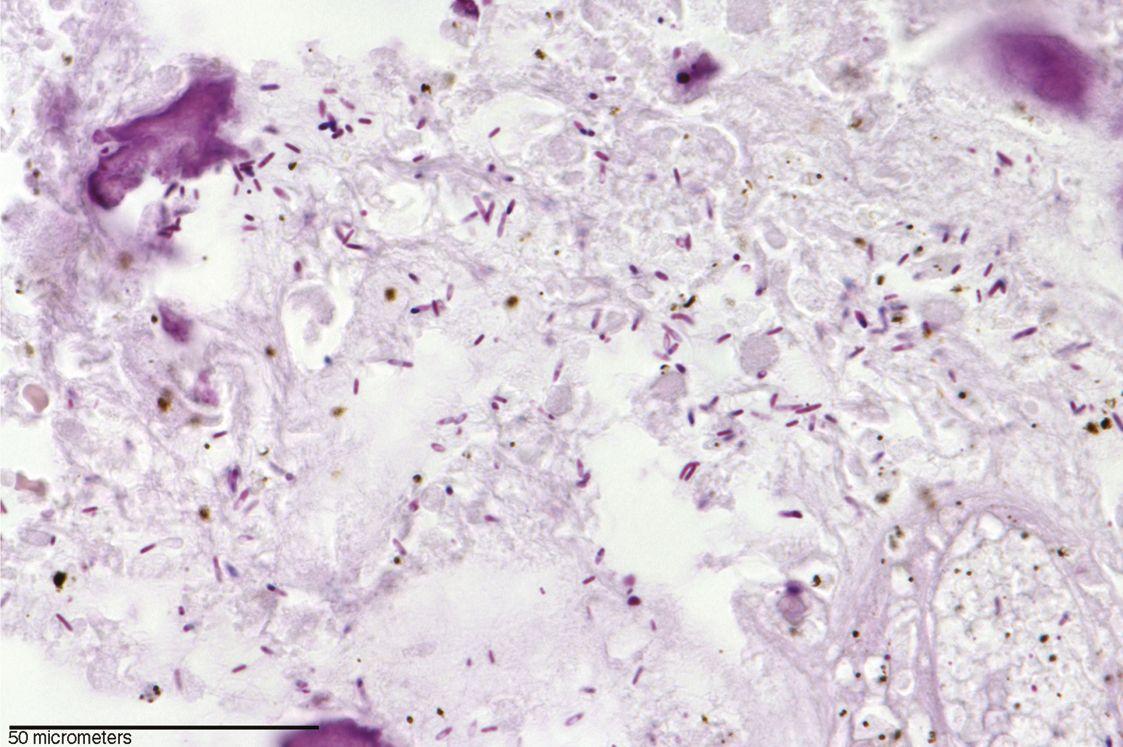 EINMALIGE VERWENDUNG Clostridium novyi-Bakterien