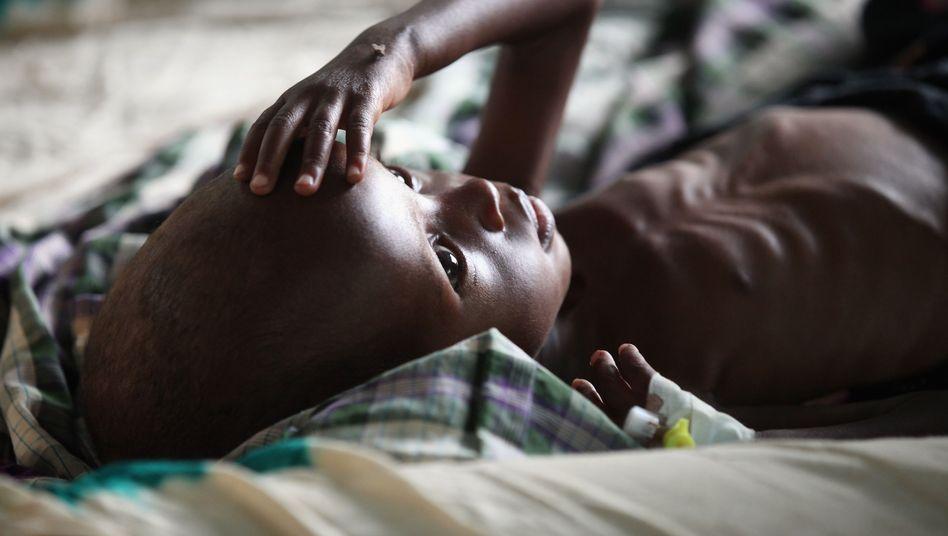 Unterernährtes Kind in Kenia: Mehr als 800 Millionen Menschen leiden Hunger