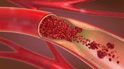 Wie das Coronavirus das Risiko für Thrombosen erhöht