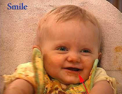 Baby-Lächeln: Linke Mundhälfte tritt stärker in Aktion