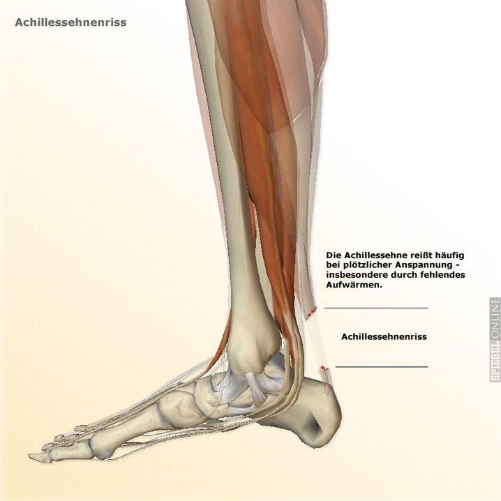 Achillessehnenriss (grafische Illustration): Zur Vollansicht bitte klicken