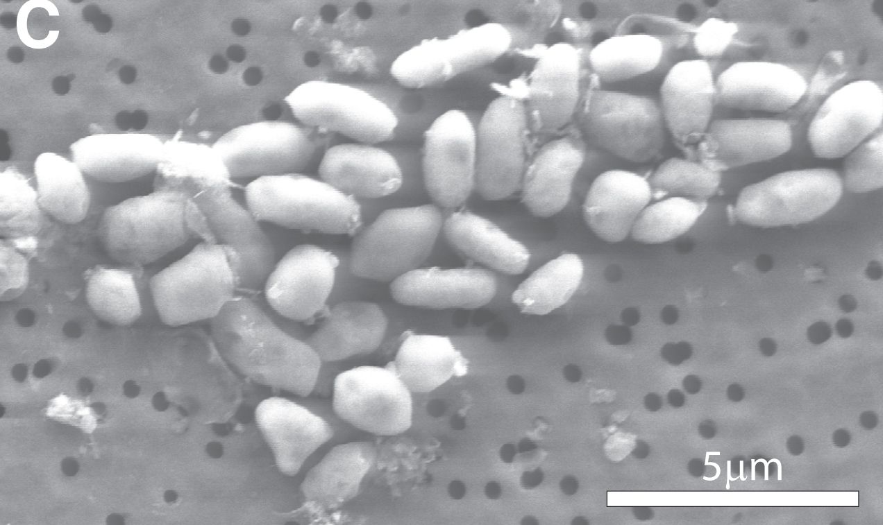 EINMALIGE VERWENDUNG Arsen-Bakterien / Mono Lake