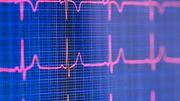 Fünf Theorien, wie Covid-19 Herz und Kreislauf schadet