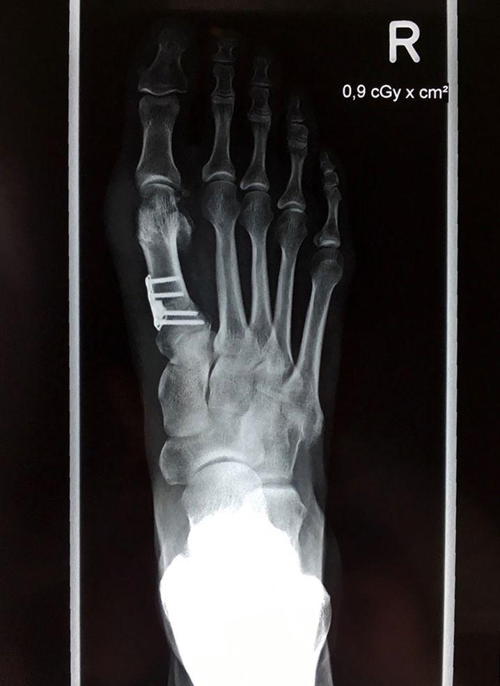 Röntgenbild nach einer Hallux-valgus-Operation