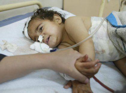 Ohne Hilfe werden viele der irakischen Kinder schon die nächsten Tage nicht überleben
