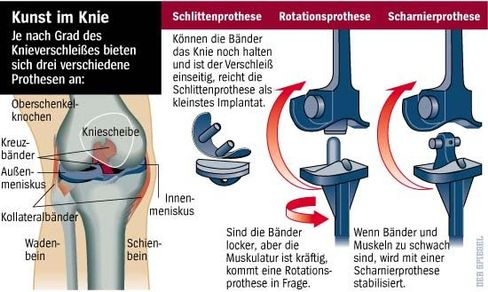 Kunst im Knie: Die verschiedenen Arten der Knieprothese