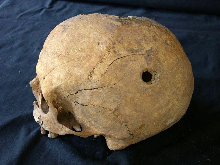 Loch im Schädel: Aus der Periode des Mittelalters sind nur wenige Trepanationen bekannt.